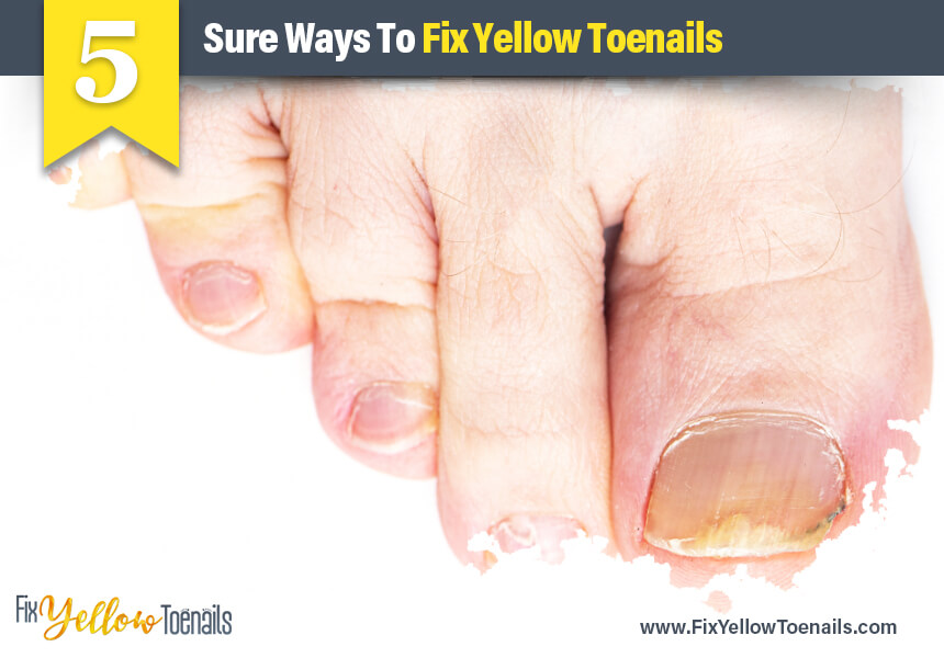 tea tree oil yellow toenails