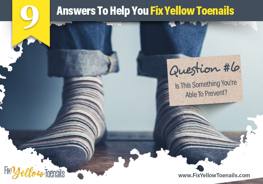 best ways to treat yellow toenails
