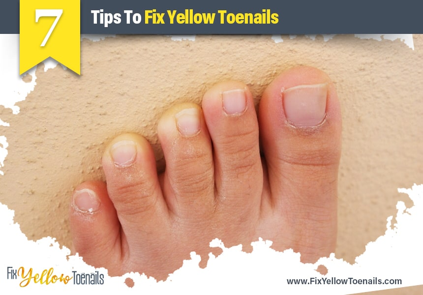 causes of yellow nails