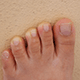 7 Tips To Fix Yellow Toenails